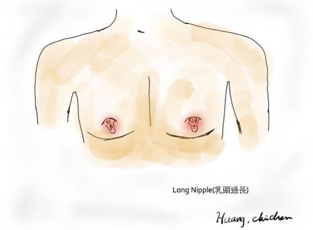 乳頭整形手術
