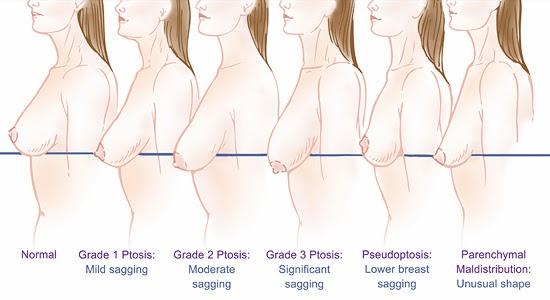 提乳或者提乳加上隆乳來改善胸部形狀