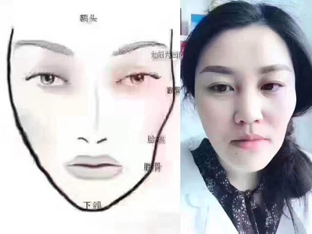 隨著時間的變化臉部逐漸的產生紋路