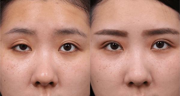 提眼瞼肌手術以及左側的雙眼皮手術