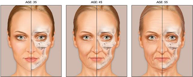 眼週的骨骼變薄,導致眼軸向外傾倒