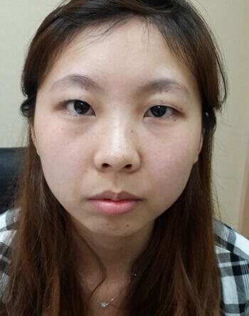 開放式雙眼皮