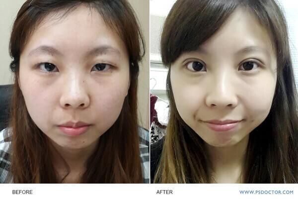 單眼皮手術