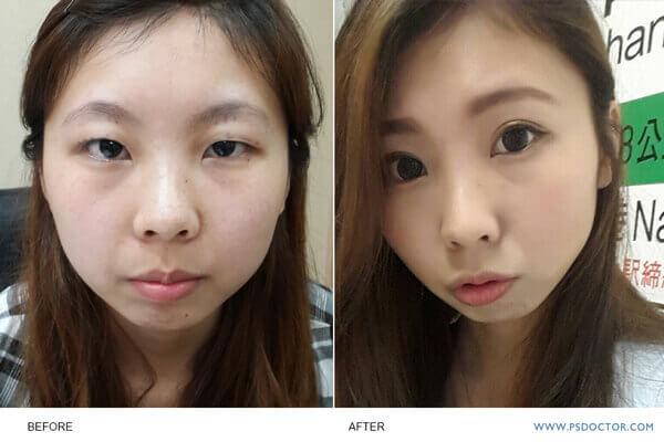 內雙雙眼皮手術