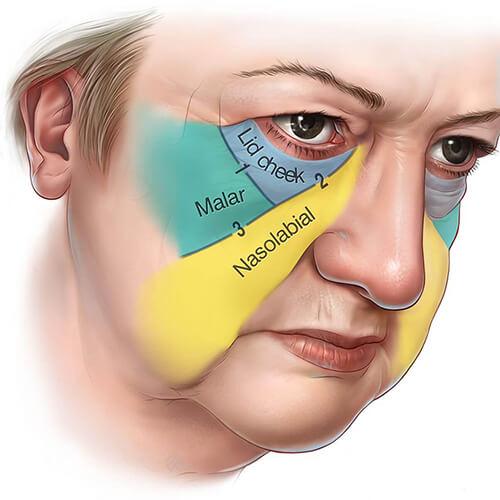 分別位於淚溝,法令紋以及嘴角的位置。所以當膠原蛋白流失,脂肪組織下垂的時候