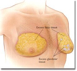 男性女乳總共分為4個等級