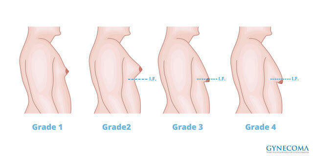 真正的男性女乳會在乳暈周圍摸到一個圓盤狀的硬Q有彈性的組織