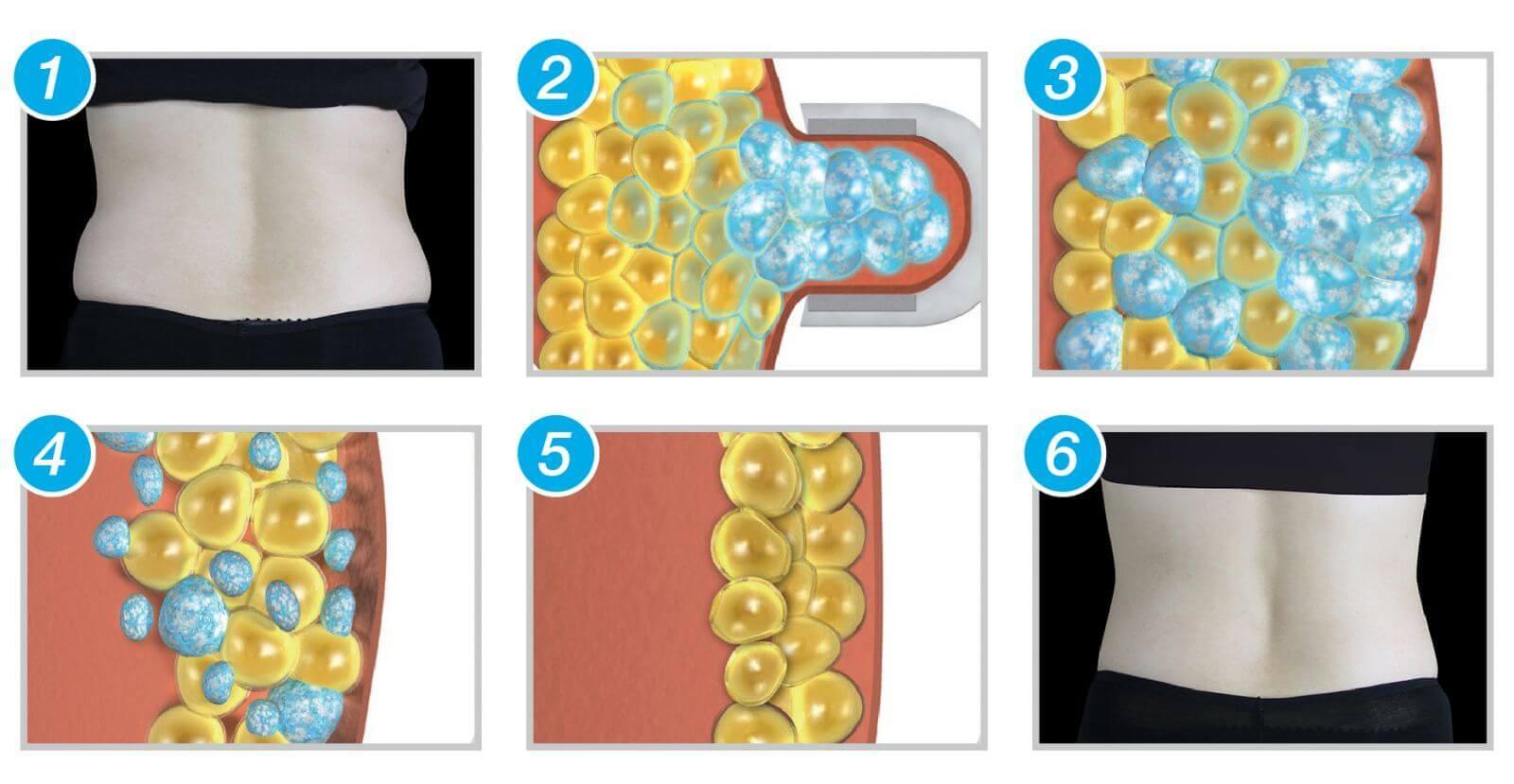 藉由控制冷凍溫度在患者皮膚部位進行治療