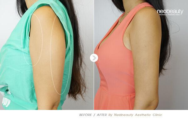 超音波抽脂手術術後須穿著塑身衣嗎