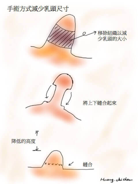 降低乳頭高度的方式