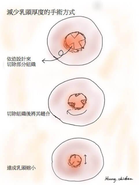 減少乳頭的直徑