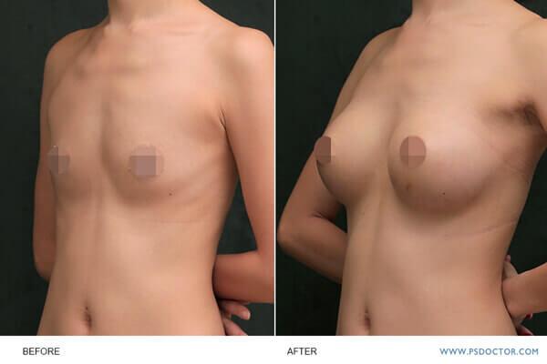 關於水滴型果凍隆乳的胸型