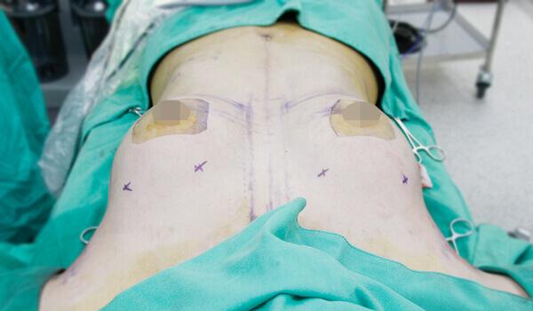 內視鏡系統在體內的位置
