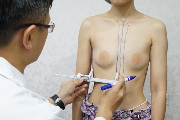 乳房植入物