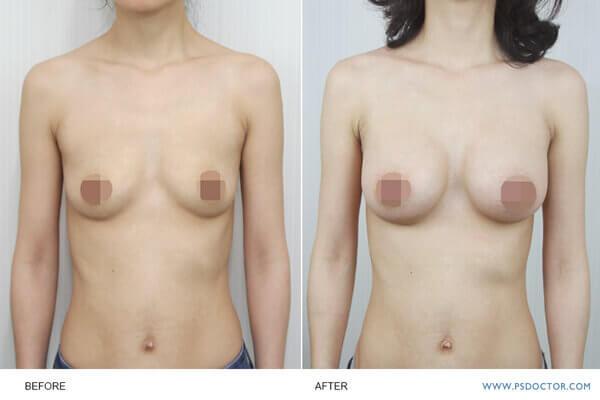 檢查乳房和腋下傷口癒合狀況