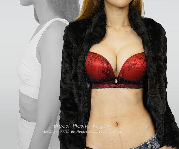 水滴型隆乳案例分享—俏媽咪蛻變娜美級好身材