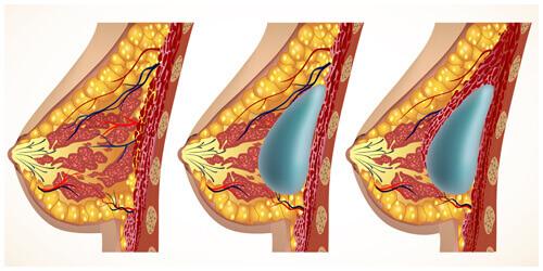 置於筋膜層或乳腺組織下方