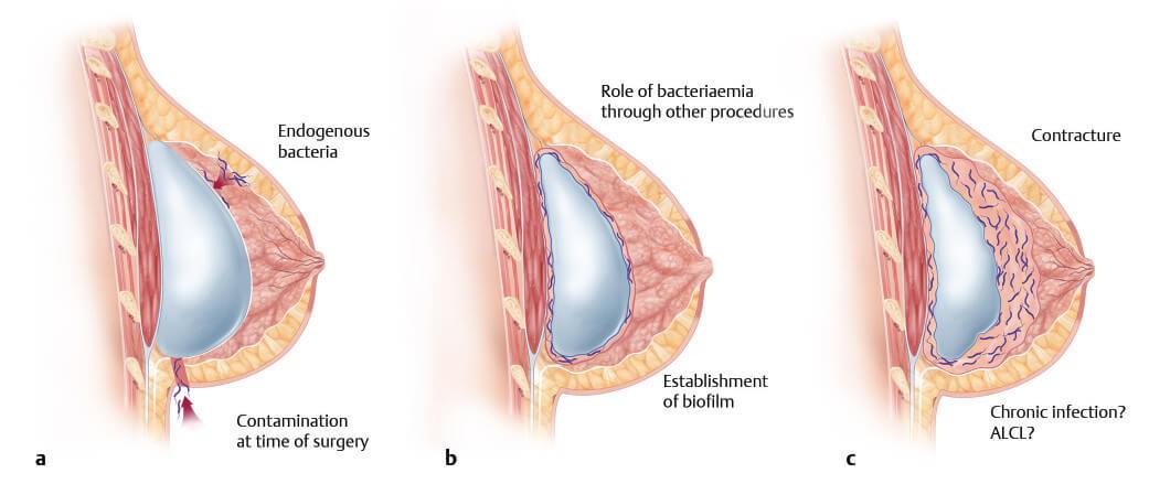 Biofilm導致莢膜攣縮