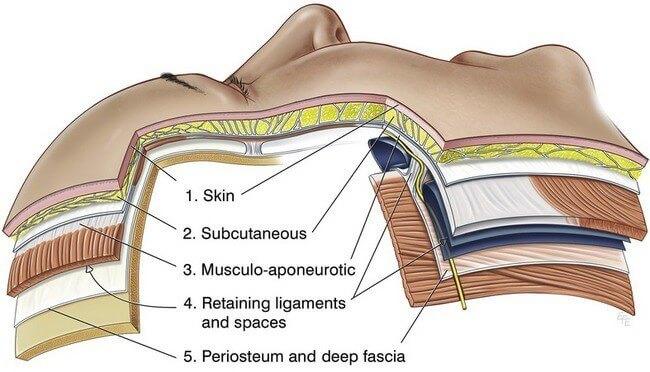 我們進行拉皮的時候,通常是針對筋膜層