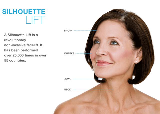 利用倒鉤或是圓錐來進行中臉部皮下組織