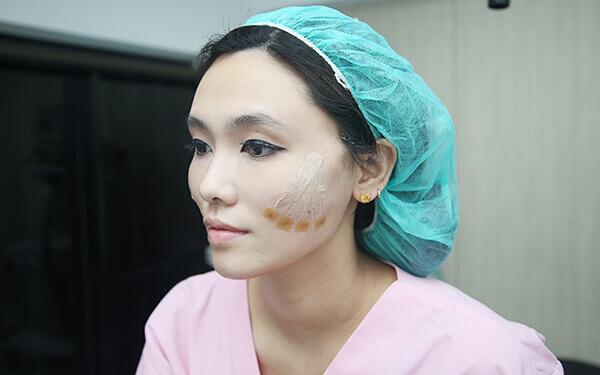 即將完成兩邊臉頰拉提的療程