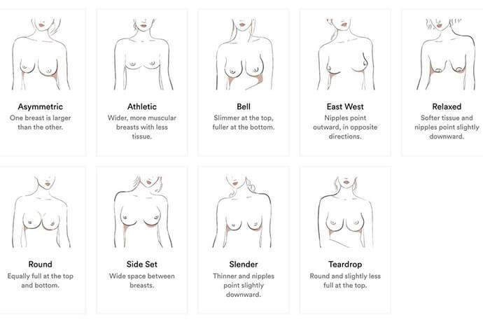 水滴型胸部