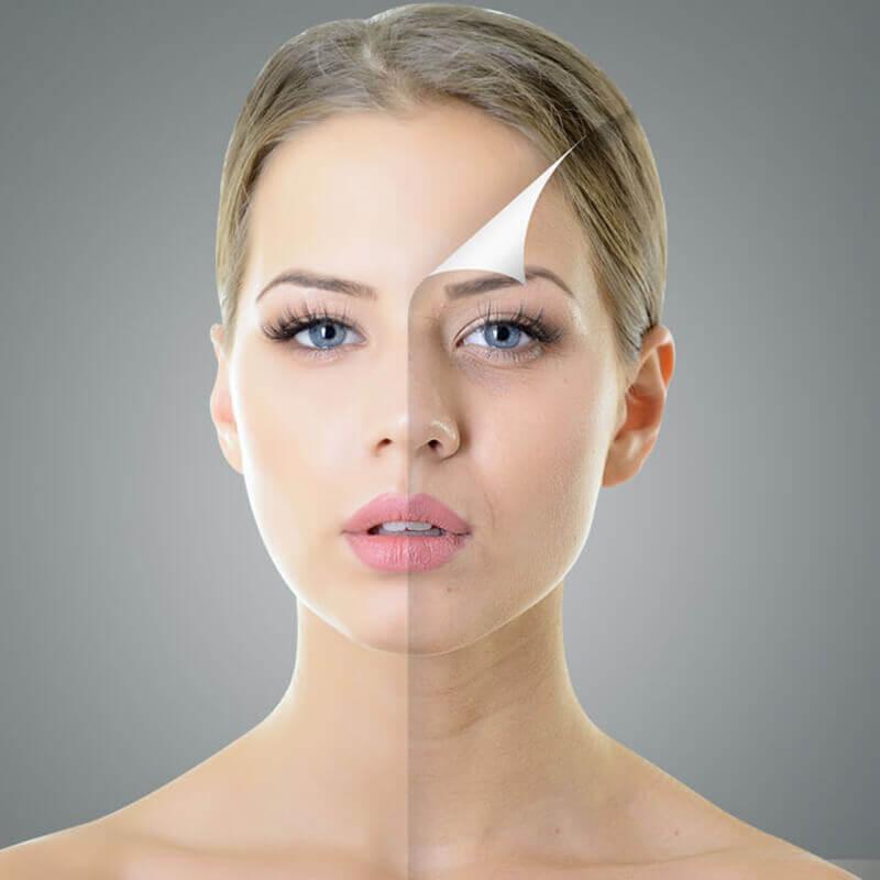 玻尿酸成就臉部完美