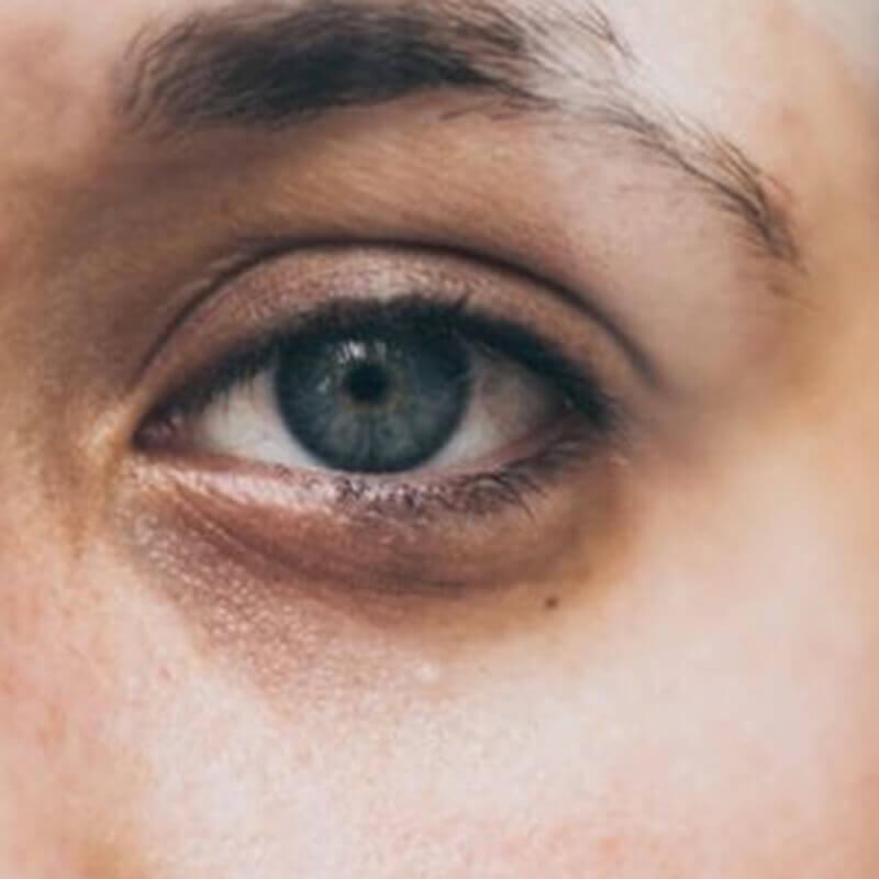 眼睛手術讓雙眼對稱平衡