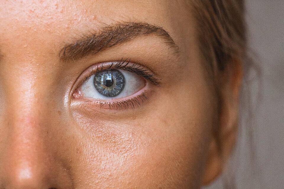 為什麽我需要提眼肌手術?關於提眼肌的大哉問