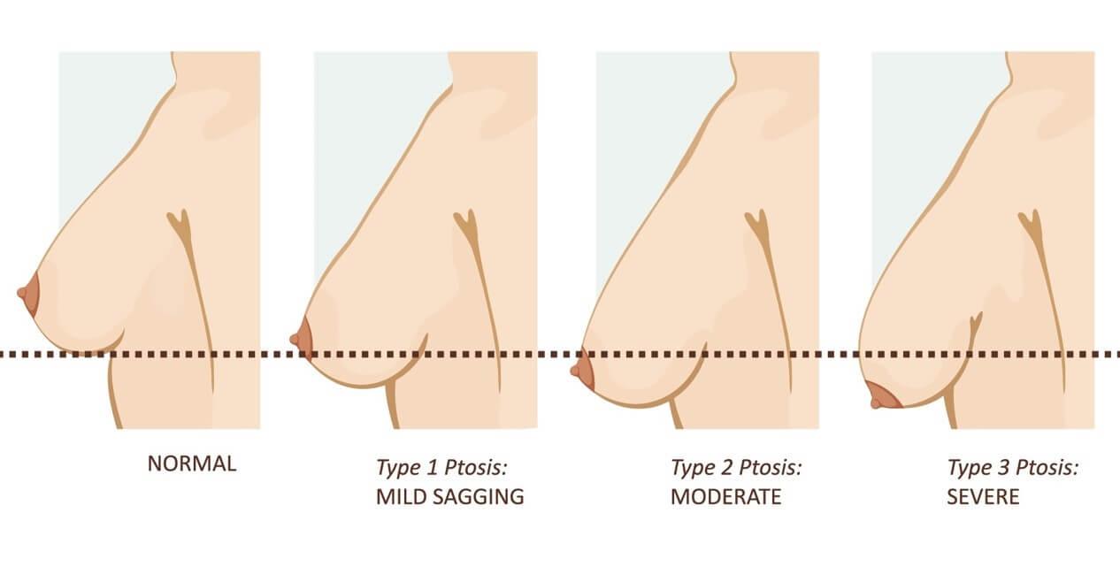 產後胸部下垂嗎?別擔心,專業醫生告訴你胸部嚴重下垂怎麽辦