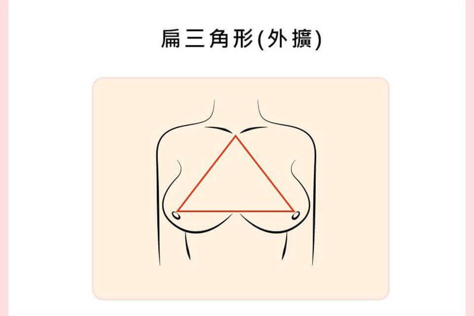 胸部外擴了嗎?胸部外擴定義這樣看,告訴你怎麼辦