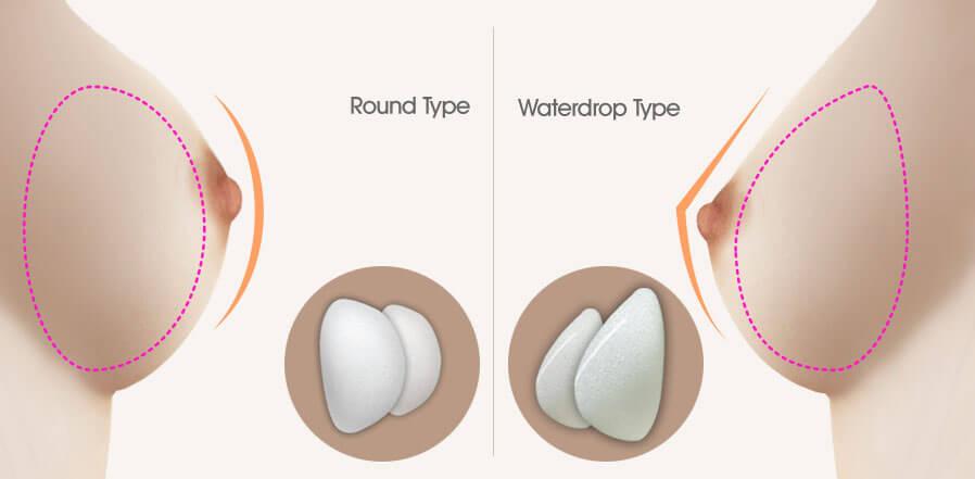 想要擁有自然水滴型乳房,推薦哪種隆乳方式?